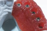 医用有机硅的3D打印技术